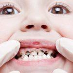 Cách trị bệnh sâu răng như thế nào?