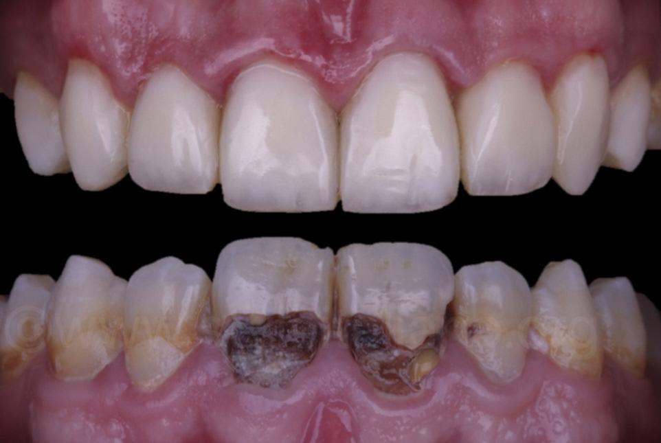 Kết quả sau khi trám răng xong
