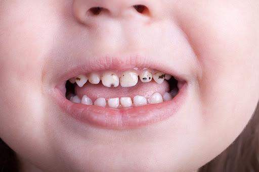 Có nên hàn răng sữa bị sâu cho em bé
